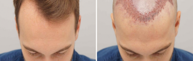 A Few Common Queries about a Hair Transplant